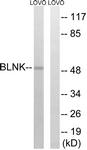 B0620-1 - B-cell linker protein / BLNK