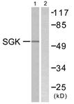 B0735-1 - SGK1 / SGK