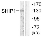 B0738-1 - INPP5D