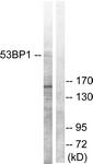 B0760-1 - TP53BP1
