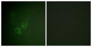 B0765-1 - Ah receptor / AhR