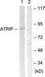 B0772-1 - ATRIP / AGS1