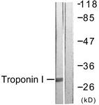 B0816-1 - Cardiac Troponin I