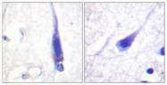 B0829-1 - Calmodulin