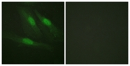 B0837-1 - Catenin beta-1