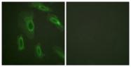B0844-1 - CD227 / Mucin-1 / MUC1
