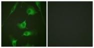 B0883-1 - Cytokeratin 8
