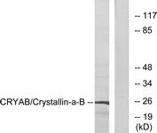 B0895-1 - Alpha-crystallin B chain / CRYA2