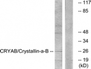 B0897-1 - Alpha-crystallin B chain / CRYA2