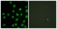 B0906-1 - DNA-PKcs / PRKDC / XRCC7