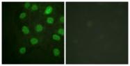 B0908-1 - DNA-PKcs / PRKDC / XRCC7