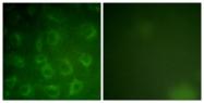 B0971-1 - CD140b / PDGFRB
