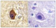 B1009-1 - Synapsin-1