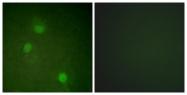 B1021-1 - Aurora kinase B