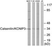 B1024-1 - Calsenilin