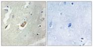 B1027-1 - CDC16 / APC6