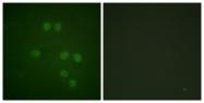 B1040-1 - HMGN1
