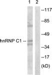 B1041-1 - hnRNP-C1/C2 / HNRNPC