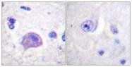 B1044-1 - HGS / HRS