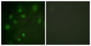 B1051-1 - CD222 / IGF2R