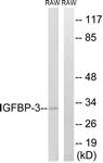 B1052-1 - IGFBP3