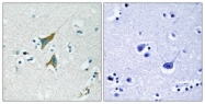 B1099-1 - DUSP1 / MKP1