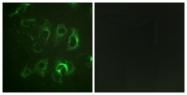 B1107-1 - ENAC beta / SCNN1B