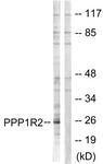 B1115-1 - PPP1R2 / IPP2