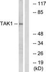 B1123-1 - TAK1 / MAP3K7