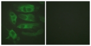 B1131-1 - Beta-2 adrenergic receptor