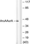 B1132-1 - Aurora kinase A