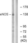 B1145-1 - NOS3