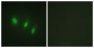 B1149-1 - FOXO4 / AFX1 / MLLT7
