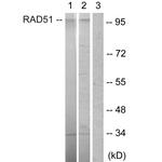 B1177-1 - POU2F1 / OCT1