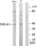 B1192-1 - Casein kinase II subunit alpha