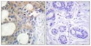 B1193-1 - CD227 / Mucin-1 / MUC1