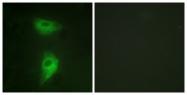 B1211-1 - CD222 / IGF2R
