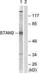 B1237-1 - STAM2