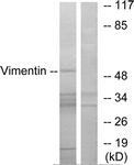 B1242-1 - Vimentin