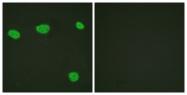 B1245-1 - Vitamin D3 receptor / NR1I1