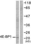 B7001-1 - EIF4EBP1 / 4E-BP1