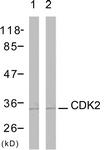 B7039-1 - CDK2