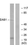B7054-1 - DAB1