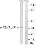 B7066-1 - EIF2A / EIF2S1