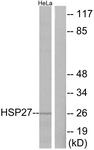B7112-1 - HSPB1 / HSP27