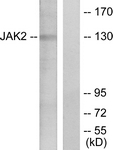 B7126-1 - Tyrosine-protein kinase JAK2