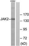 B7127-1 - Tyrosine-protein kinase JAK2