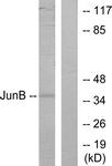 B7135-1 - Jun-B