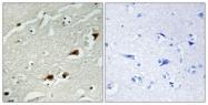B7162-1 - RELA / NF-kB p65