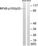 B7165-1 - NFKB2 / NF-kappa-B p100/p52